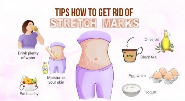 974-how-stretch-mark