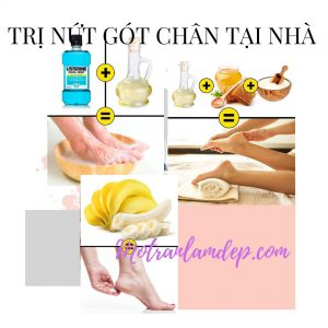 tri-nut-got-chan-tại-nha-p1