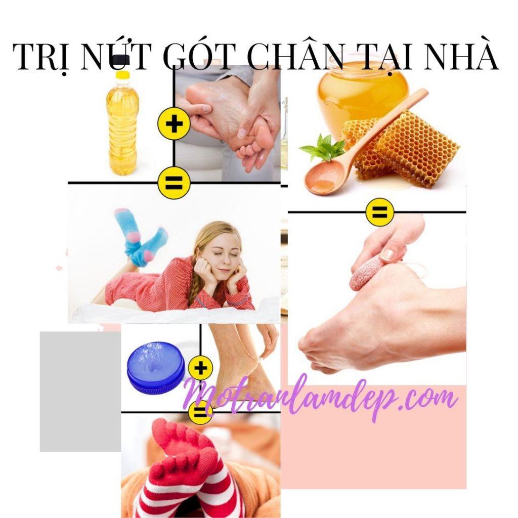 tri-nut-got-chan-tại-nha-p2